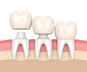 Dental Crowns & Tooth Caps: Options, Procedure & Costs