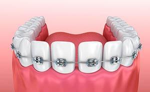 Dental Braces: Options, Procedures & Costs
