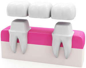 What does a Dental Bridge look like?