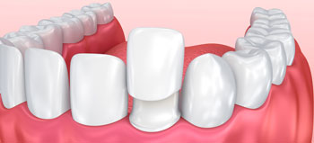 Dental Veneers Treatment