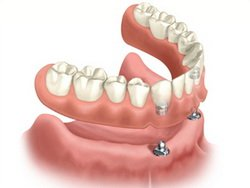 Implant to Support Full Dentures