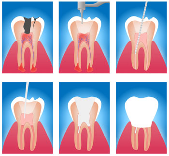 Root Canal: Treatment Options, Procedures & Costs