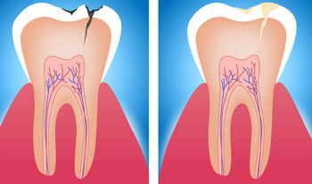 White Tooth Filling Treatment